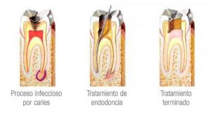 Endodoncia 3